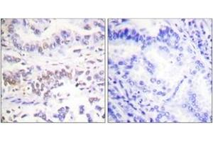 Image no. 1 for anti-X-Ray Repair Complementing Defective Repair in Chinese Hamster Cells 3 (XRCC3) (AA 41-90) antibody (ABIN2889294)