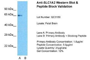 Image no. 2 for anti-Solute Carrier Family 1 (Glial High Affinity Glutamate Transporter), Member 2 (SLC1A2) (N-Term) antibody (ABIN2778148)