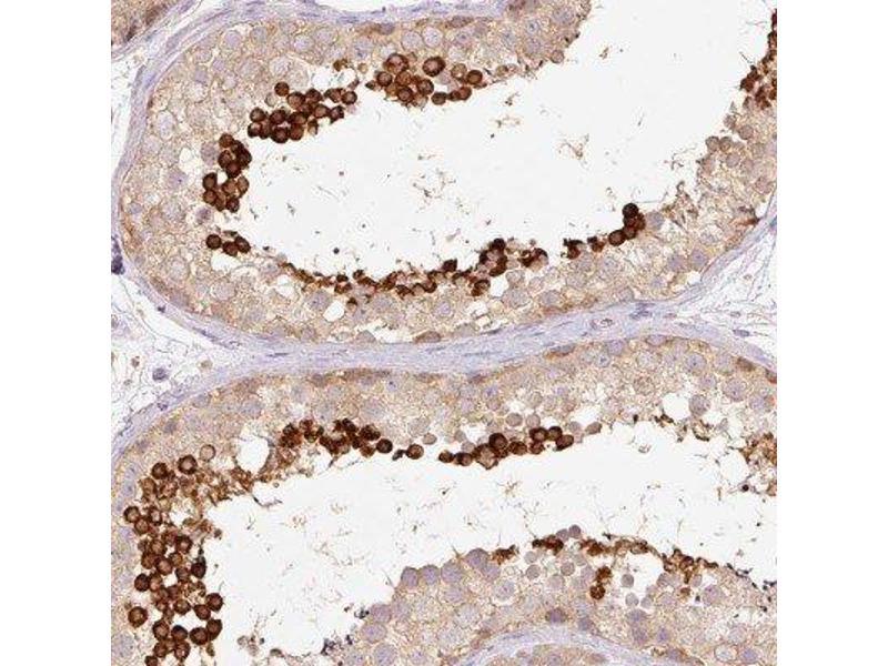 Immunohistochemistry (Paraffin-embedded Sections) (IHC (p)) image for anti-Calreticulin 3 (CALR3) antibody (ABIN4287503)