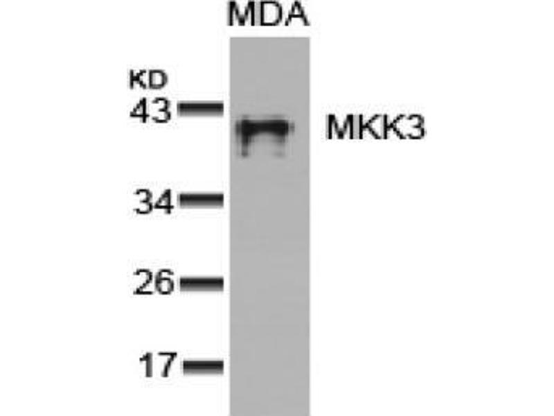 Image no. 3 for anti-MAP2K3 antibody (Mitogen-Activated Protein Kinase Kinase 3) (Ser189) (ABIN197297)