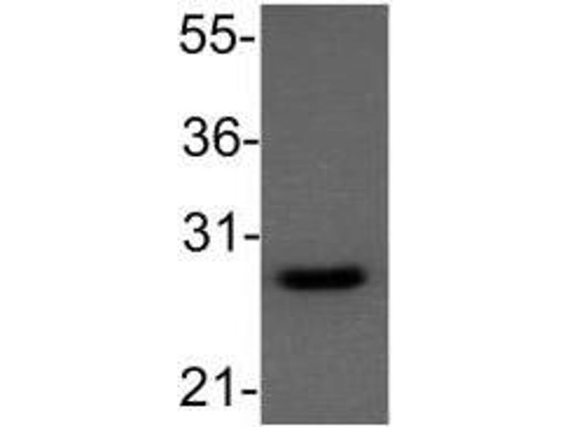 Western Blotting (WB) image for anti-B-Cell CLL/lymphoma 2 (BCL2) antibody (ABIN4283360)