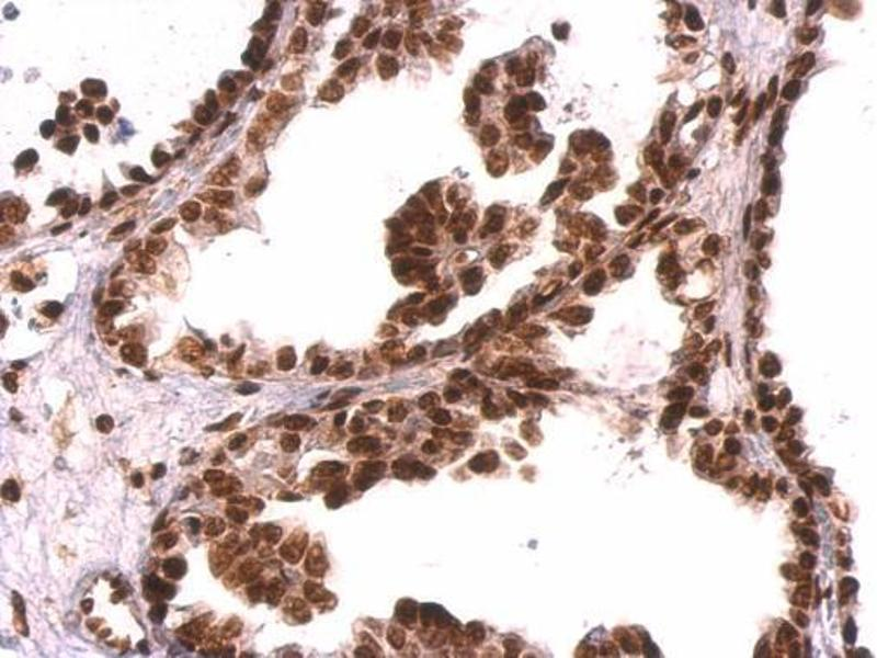 Immunohistochemistry (IHC) image for anti-GRB2 antibody (Growth Factor Receptor-Bound Protein 2) (C-Term) (ABIN2854697)