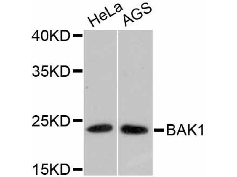 Western Blotting (WB) image for anti-BCL2-Antagonist/killer 1 (BAK1) antibody (ABIN5996914)