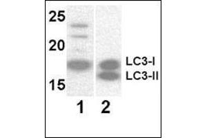 Image no. 1 for anti-Microtubule-Associated Protein 1 Light Chain 3 alpha (MAP1LC3A) antibody (ABIN2937208)