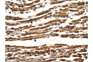 Image no. 1 for anti-N(alpha)-Acetyltransferase 16, NatA Auxiliary Subunit (NAA16) (Middle Region) antibody (ABIN630806)