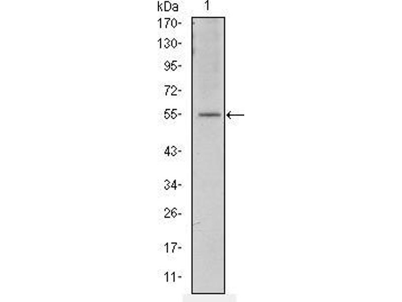 Western Blotting (WB) image for anti-Activating Transcription Factor 2 (ATF2) antibody (ABIN968968)