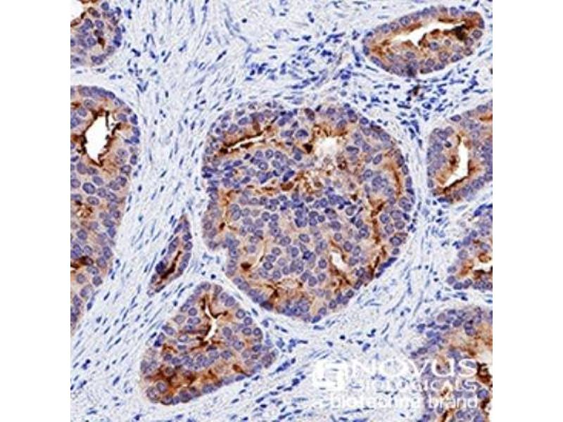 Immunohistochemistry (Paraffin-embedded Sections) (IHC (p)) image for anti-p53 antibody (Tumor Protein P53) (AA 14-389) (ABIN152249)