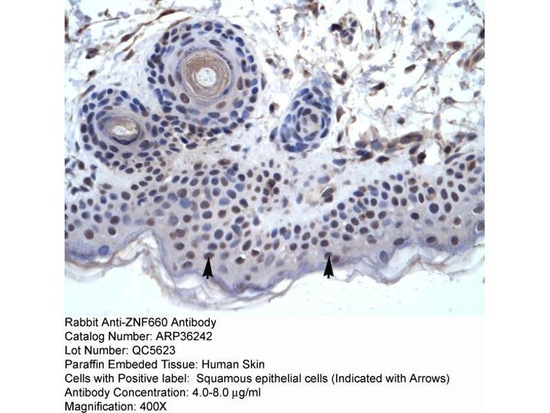 Immunohistochemistry (IHC) image for anti-Zinc Finger Protein 660 (ZNF660) (C-Term) antibody (ABIN183320)