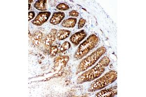 Image no. 3 for anti-Valosin Containing Protein (VCP) (AA 749-766), (C-Term) antibody (ABIN3043984)