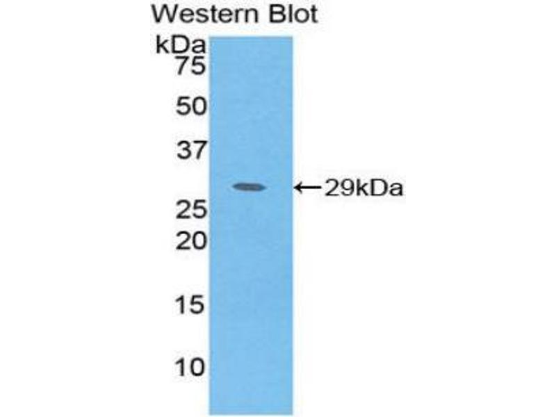 Western Blotting (WB) image for anti-Methionine Adenosyltransferase II, alpha (MAT2A) (AA 176-395) antibody (ABIN1859766)