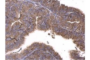 Immunohistochemistry (Paraffin-embedded Sections) (IHC (p)) image for anti-GNAQ antibody (Guanine Nucleotide Binding Protein (G Protein), Q Polypeptide) (Center) (ABIN441968)
