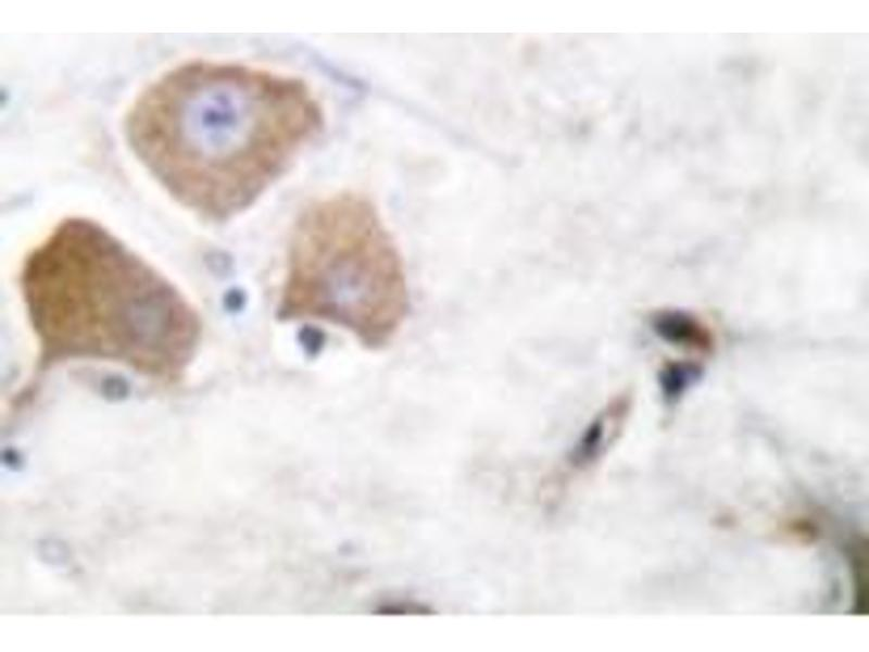 image for anti-MAPT antibody (Microtubule-Associated Protein tau) (pSer396) (ABIN318142)