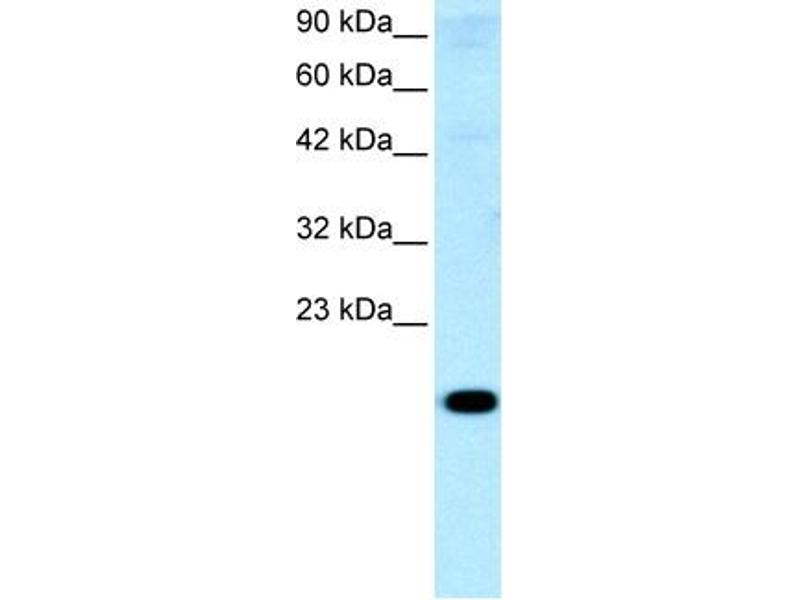 Western Blotting (WB) image for anti-Cbp/p300-Interacting Transactivator, with Glu/Asp-Rich Carboxy-terminal Domain, 1 (CITED1) (Middle Region) antibody (ABIN2777537)