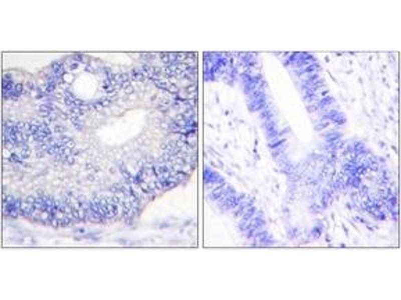 Immunohistochemistry (IHC) image for anti-Transforming Growth Factor, alpha (TGFA) (AA 111-160) antibody (ABIN1533415)