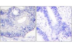 Immunohistochemistry (IHC) image for anti-Transforming Growth Factor, alpha (TGFA) (AA 111-160) antibody (ABIN1533415)
