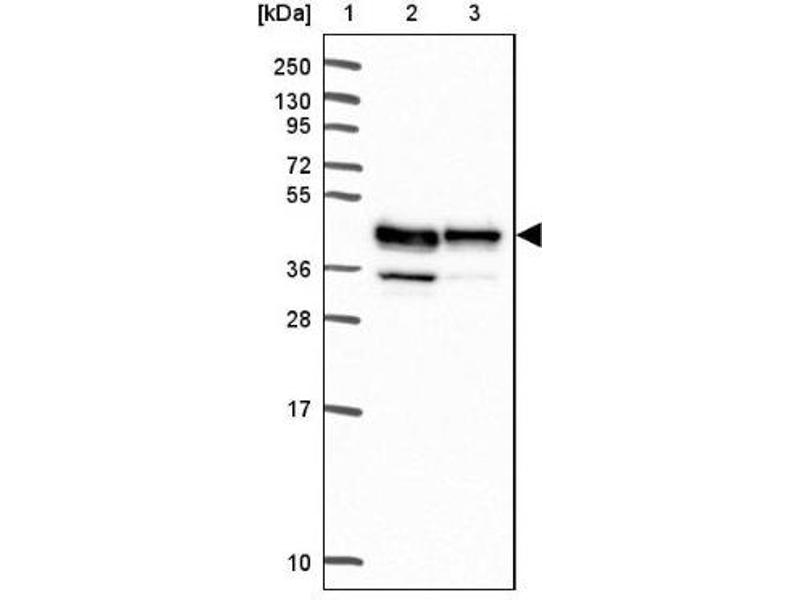 Western Blotting (WB) image for anti-Reticulocalbin 3, EF-Hand Calcium Binding Domain (RCN3) antibody (ABIN4349751)