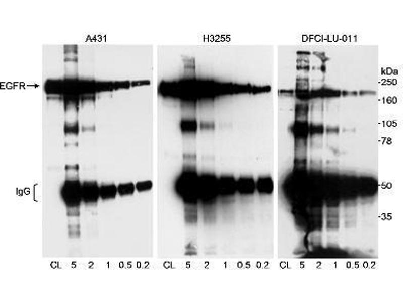 Western Blotting (WB) image for anti-Epidermal Growth Factor Receptor (EGFR) (AA 1100-1150) antibody (ABIN152027)