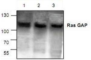 Image no. 1 for anti-RAS P21 Protein Activator (GTPase Activating Protein) 1 (RASA1) antibody (ABIN223049)