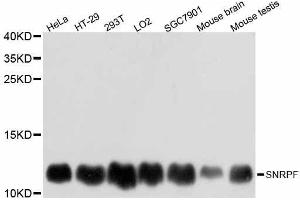 Image no. 1 for anti-Small Nuclear Ribonucleoprotein Polypeptide F (SNRPF) antibody (ABIN6148228)