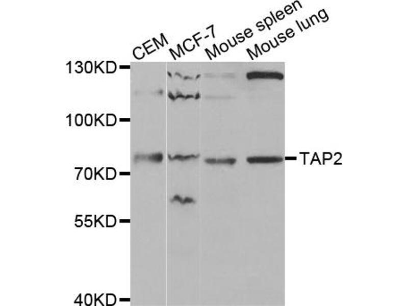 Image no. 1 for anti-Transporter 2, ATP-Binding Cassette, Sub-Family B (MDR/TAP) (TAP2) antibody (ABIN6568799)