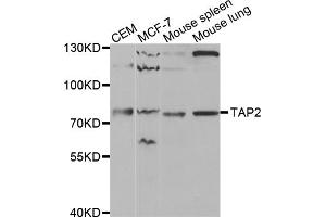 Image no. 1 for anti-Transporter 2, ATP-Binding Cassette, Sub-Family B (MDR/TAP) (TAP2) antibody (ABIN6568799)
