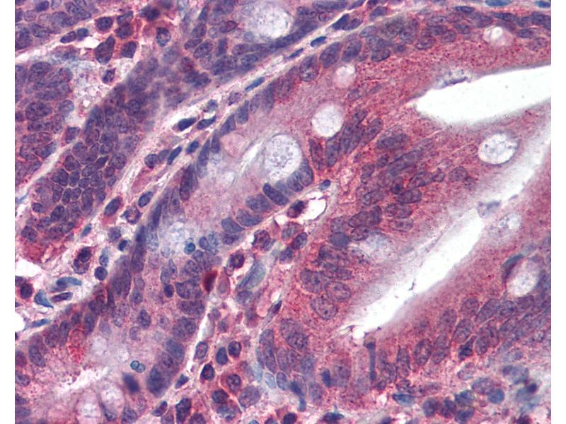 Immunohistochemistry (IHC) image for anti-Monoglyceride Lipase (MGLL) (AA 17-29) antibody (ABIN574301)