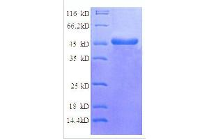 Image no. 1 for NADH Dehydrogenase (Ubiquinone) Flavoprotein 2, 24kDa (NDUFV2) (AA 35-249), (partial) protein (GST tag) (ABIN1608068)