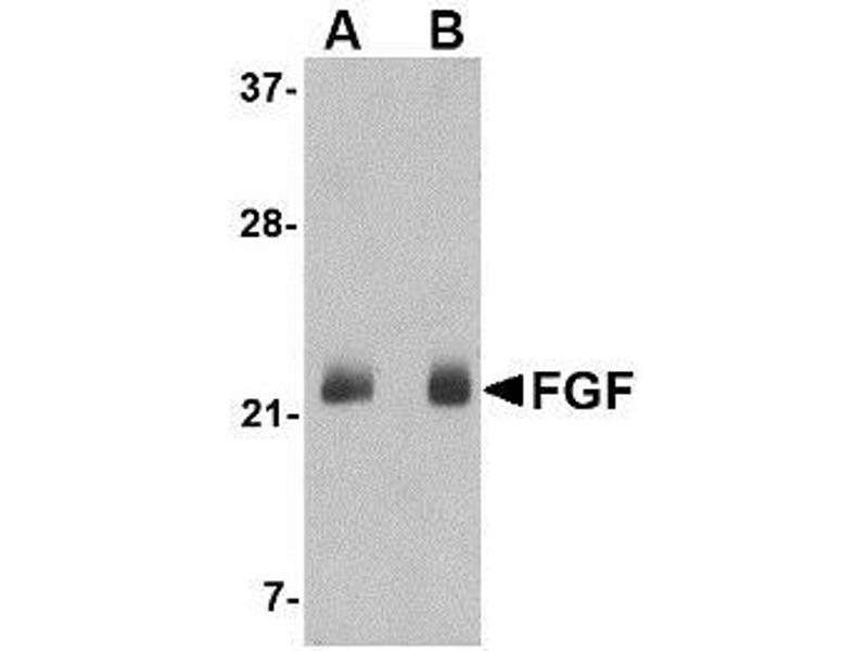 Western Blotting (WB) image for anti-FGF4 antibody (Fibroblast Growth Factor 4) (C-Term) (ABIN499836)