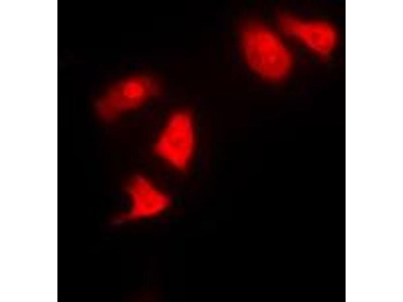 Immunofluorescence (IF) image for anti-Checkpoint Kinase 1 (CHEK1) (Center) antibody (ABIN2705868)
