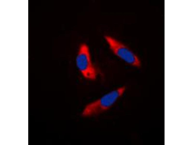 Immunofluorescence (IF) image for anti-Ribosomal Protein S6 Kinase, 70kDa, Polypeptide 1 (RPS6KB1) (Center) antibody (ABIN2707004)