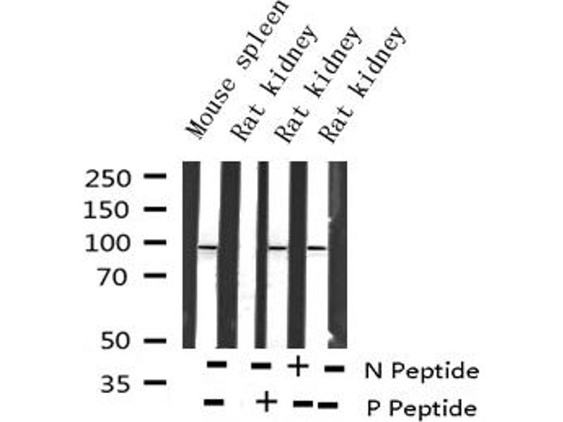 Western Blotting (WB) image for anti-Forkhead Box O3 (FOXO3) (pSer253) antibody (ABIN6255131)