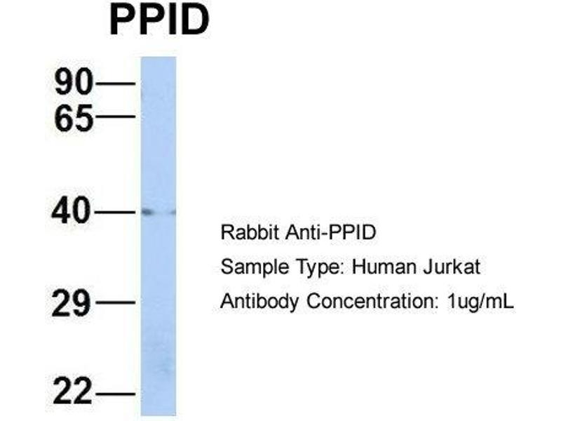 Western Blotting (WB) image for anti-Peptidylprolyl Isomerase D (PPID) (Middle Region) antibody (ABIN2786802)