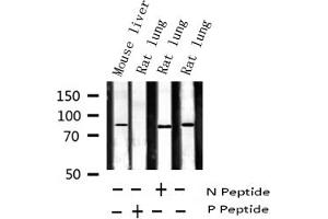 Western Blotting (WB) image for anti-Signal Transducer and Activator of Transcription 5A (STAT5A) (pSer780) antibody (ABIN6256423)