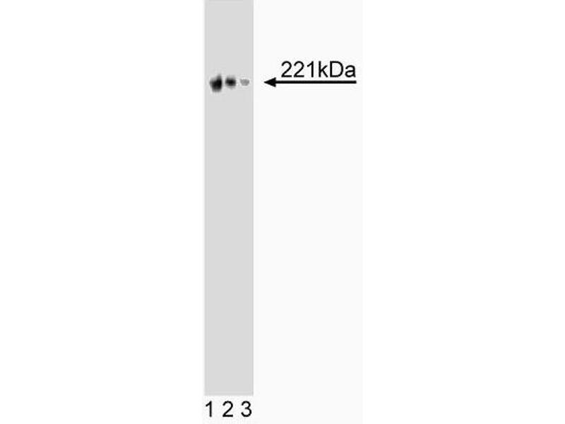 Western Blotting (WB) image for anti-Chromodomain Helicase DNA Binding Protein 3 (CHD3) (AA 1277-1474) antibody (ABIN968677)