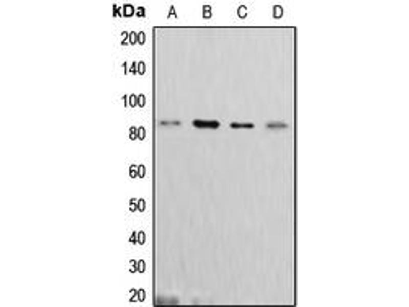 Western Blotting (WB) image for anti-Cortactin (CTTN) (C-Term) antibody (ABIN2704675)