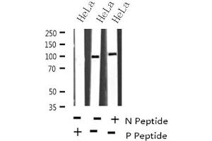 Image no. 1 for anti-Activating Transcription Factor 6 (ATF6) (pThr166) antibody (ABIN6268220)