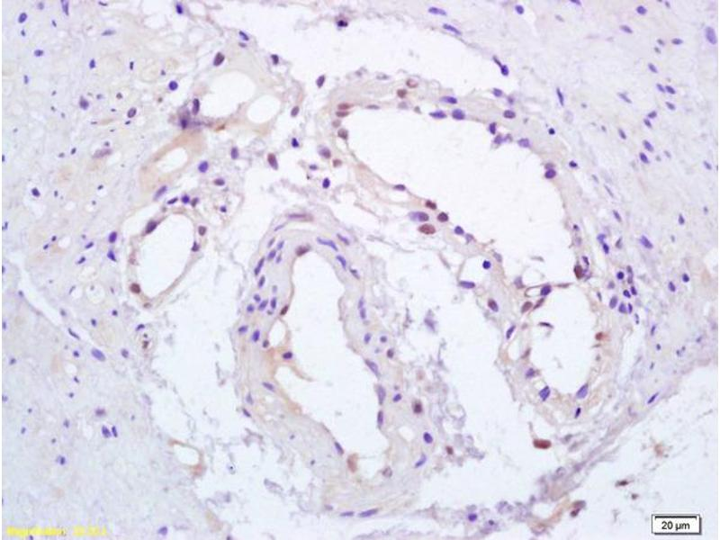 Immunohistochemistry (IHC) image for anti-PPARG antibody (Peroxisome Proliferator-Activated Receptor gamma) (AA 90-130) (ABIN703405)