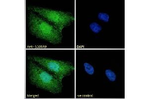 Image no. 7 for anti-S100 Calcium Binding Protein A9 (S100A9) (Internal Region) antibody (ABIN335161)