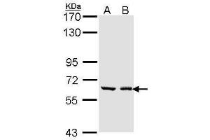 Image no. 1 for anti-UDP Glucuronosyltransferase 1 Family, Polypeptide A6 (UGT1A6) (Center) antibody (ABIN2856941)