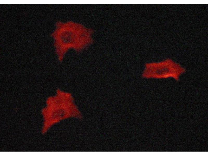 Immunofluorescence (fixed cells) (IF/ICC) image for anti-Vimentin (VIM) antibody (ABIN6269441)