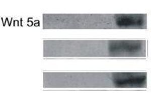 Western Blotting (WB) image for anti-Wingless-Type MMTV Integration Site Family, Member 5A (WNT5A) (AA 330-380) antibody (ABIN675758)