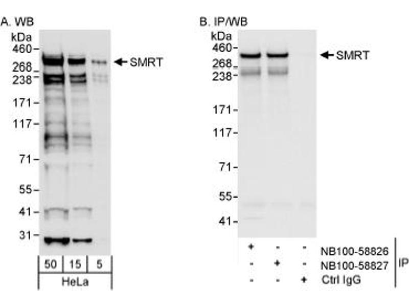 Western Blotting (WB) image for anti-Nuclear Receptor Co-Repressor 2 (NCOR2) (AA 1525-1575) antibody (ABIN188817)