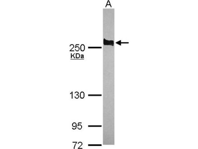 Western Blotting (WB) image for anti-Adenomatous Polyposis Coli (APC) (C-Term) antibody (ABIN4280975)