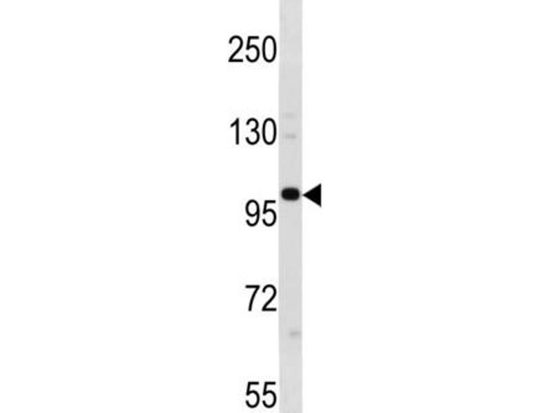 Image no. 1 for anti-Establishment of Cohesion 1 Homolog 1 (S. Cerevisiae) (ESCO1) antibody (ABIN3004513)