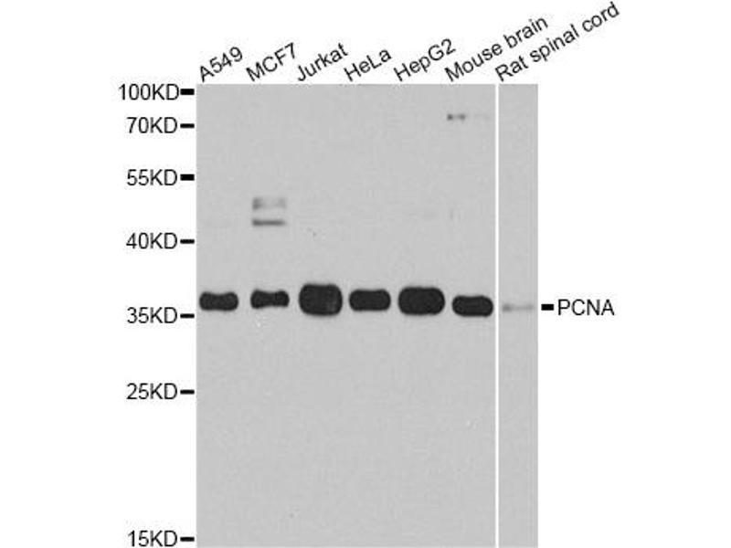 Image no. 1 for anti-Proliferating Cell Nuclear Antigen (PCNA) antibody (ABIN6566543)