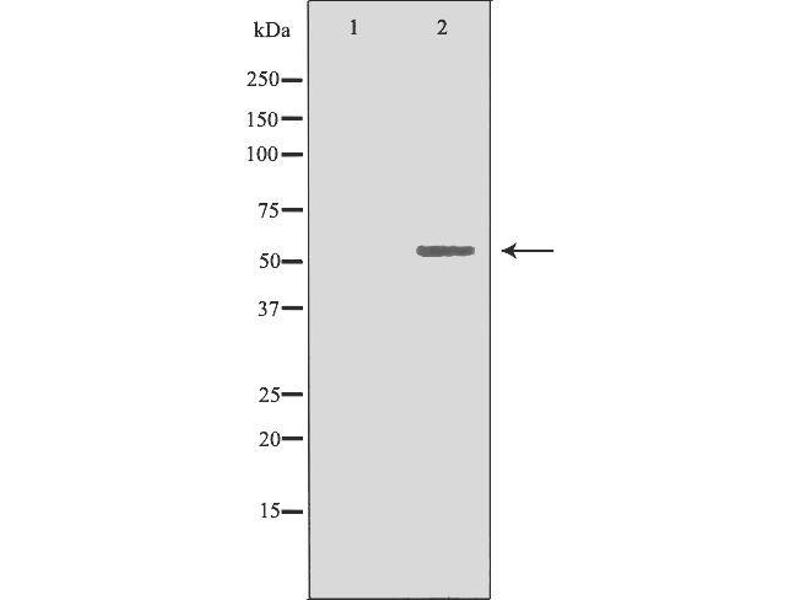 Western Blotting (WB) image for anti-Cytochrome P450, Family 19, Subfamily A, Polypeptide 1 (CYP19A1) antibody (ABIN6257945)