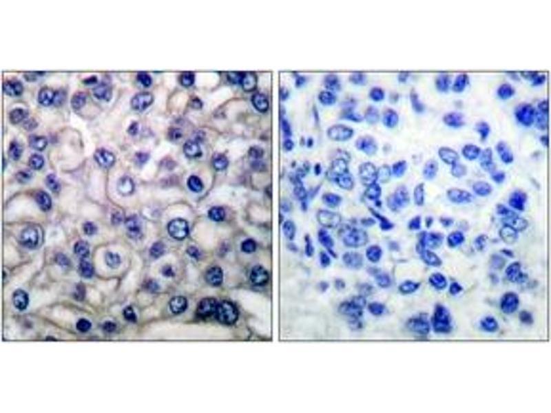 Immunohistochemistry (IHC) image for anti-Epidermal Growth Factor Receptor (EGFR) (AA 661-710) antibody (ABIN1532195)