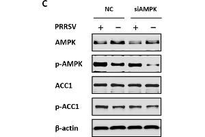 Image no. 1 for anti-Acetyl-CoA Carboxylase alpha (ACACA) (pSer79) antibody (ABIN3020067)