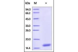 Image no. 1 for Cystatin S (CST4) (AA 21-141) protein (His tag) (ABIN2180919)