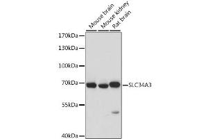 Image no. 1 for anti-Solute Carrier Family 34 (Sodium Phosphate), Member 3 (SLC34A3) antibody (ABIN6717501)